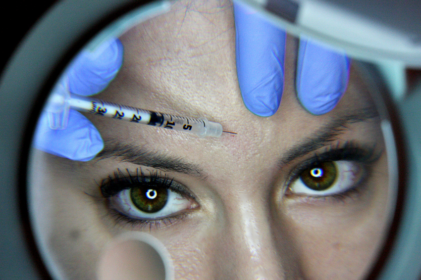 what you should know about botox