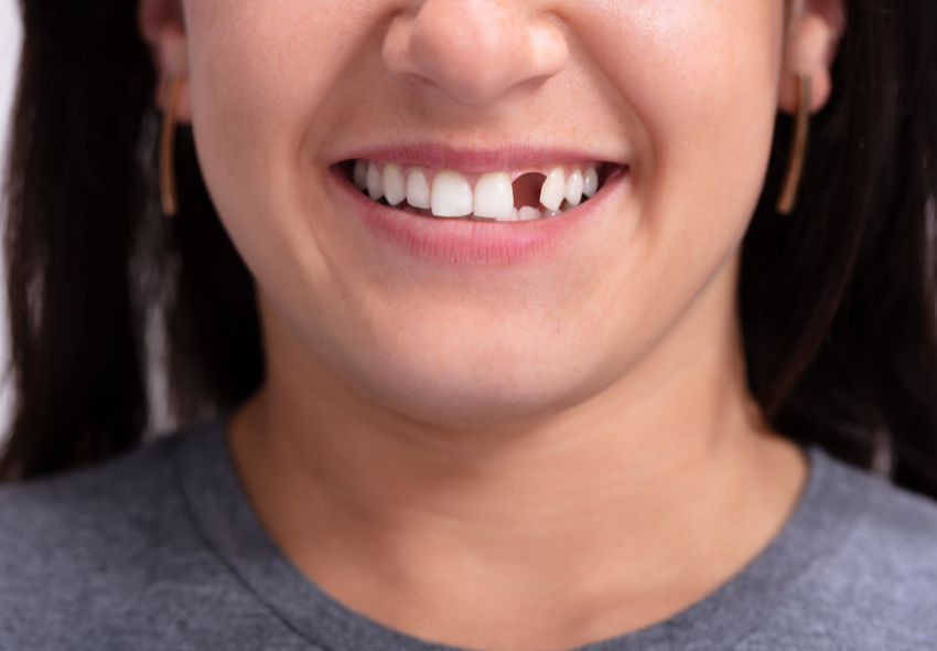 The Facts about Dental Implants